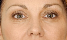 Wrinkle reduction-Botox