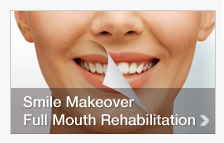 Smile Makeover - Full mouth Rehabilitation